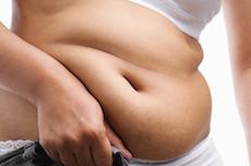 脂肪吸引の体験談